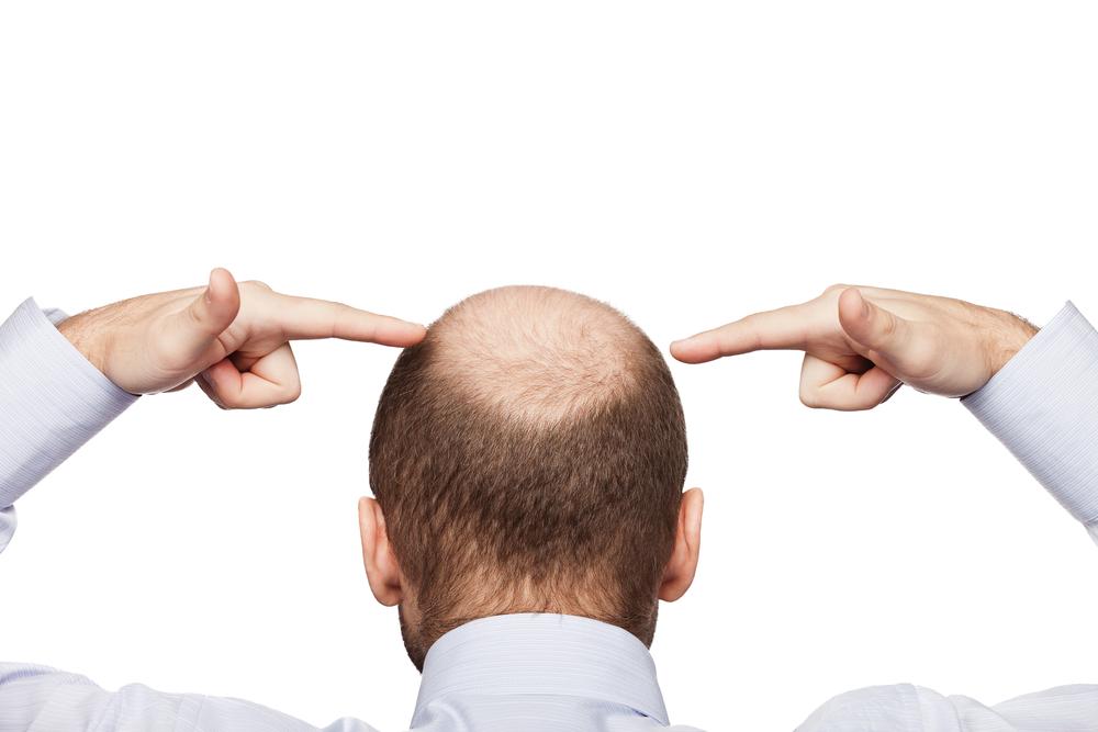 Goedkope haartransplantatie