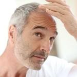 Haartransplantatie in Turkije - Flyhealth Behandelingen