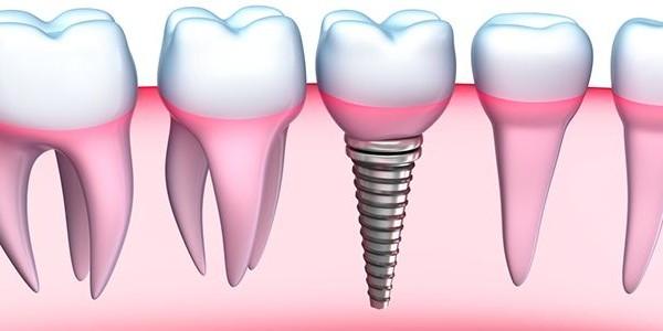 Wat zijn de voordelen van tandheelkundige implantaten? FlyHealth