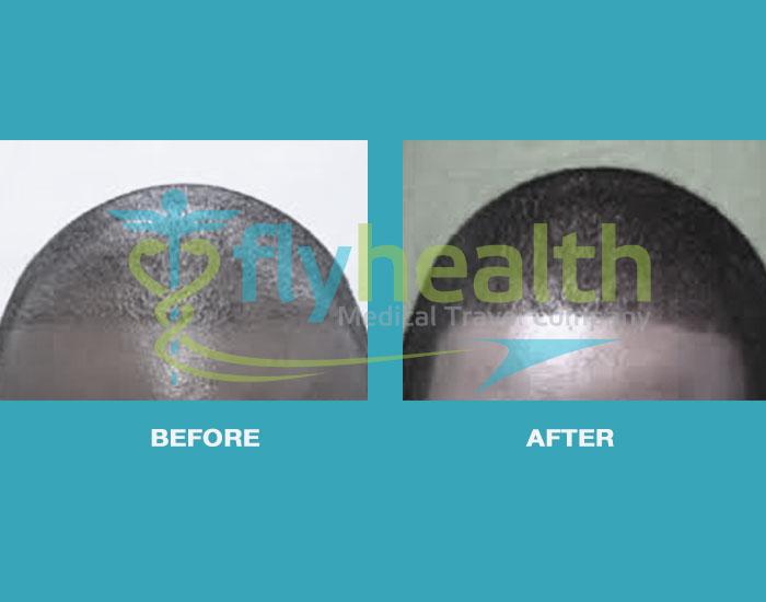 before-after-black-hair-transplant-03