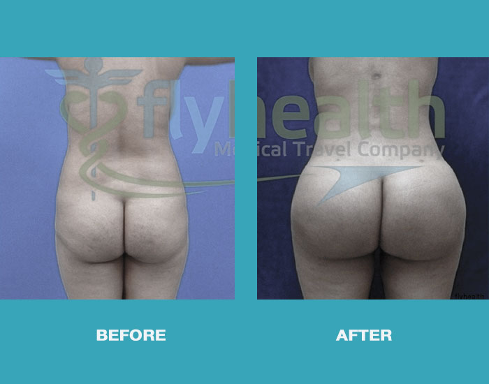 before-after-brazilian-butt-lift-01
