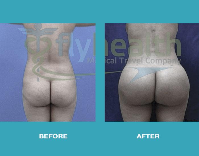 before-after-brazilian-butt-lift-01