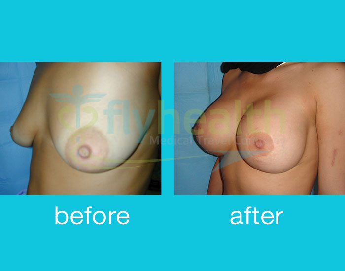 before-after-breast-enlargement-02