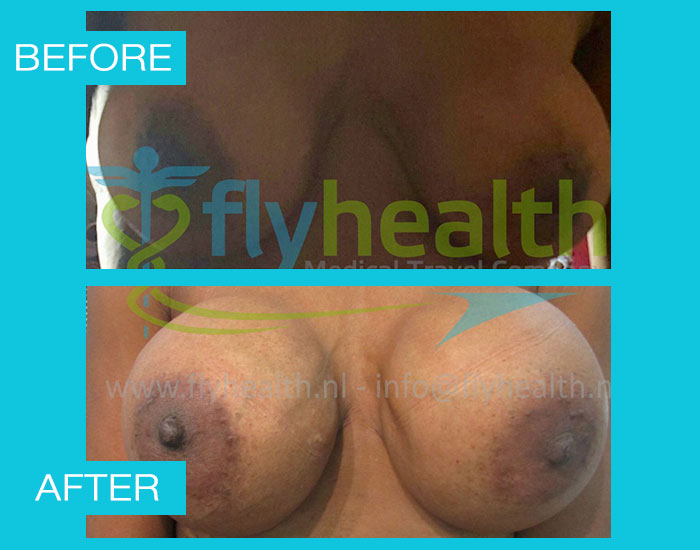 before-after-breast-enlargement-04
