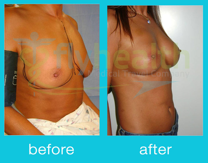 before-after-breast-lift-02