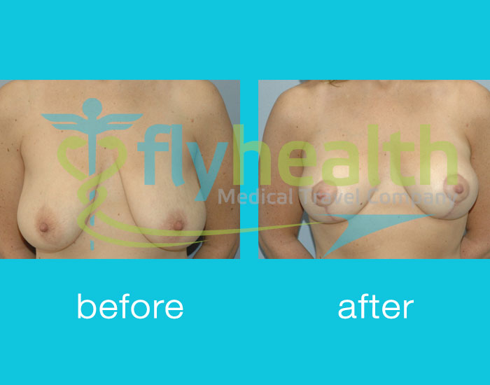 before-after-breast-lift-03