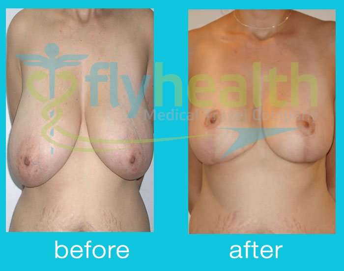 before-after-breast-reduction-01