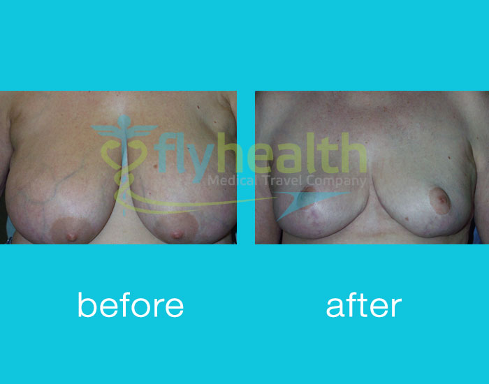 before-after-breast-reduction-02