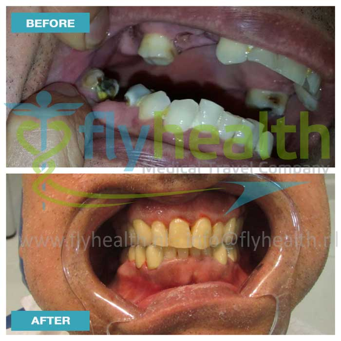 before-after-dental-treatments-01
