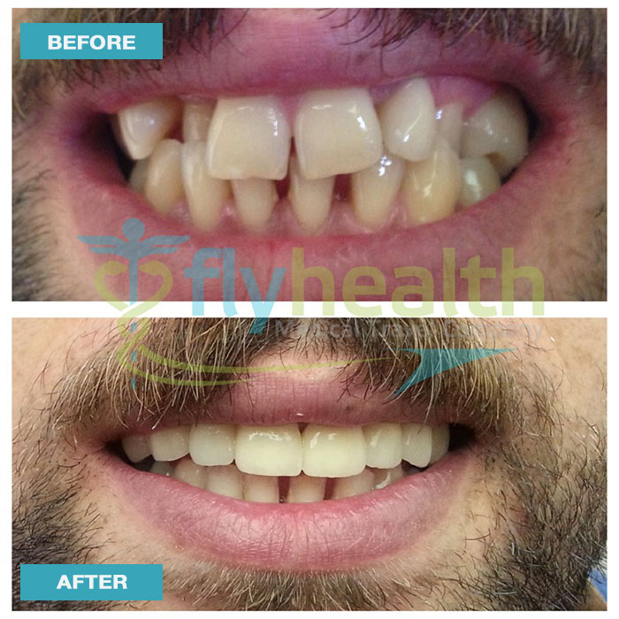 before-after-dental-treatments-03