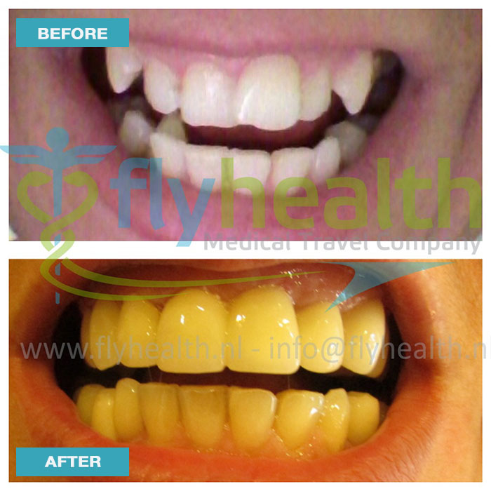 before-after-dental-treatments-04
