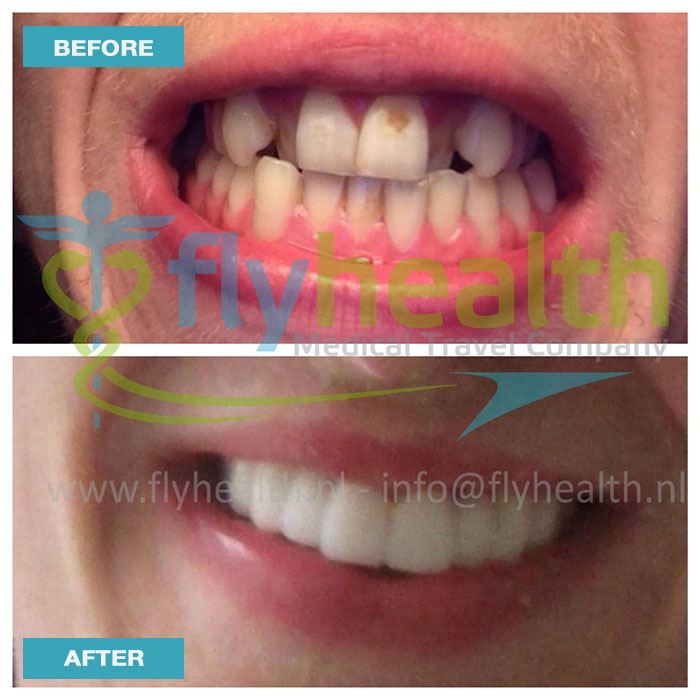 before-after-dental-treatments-06