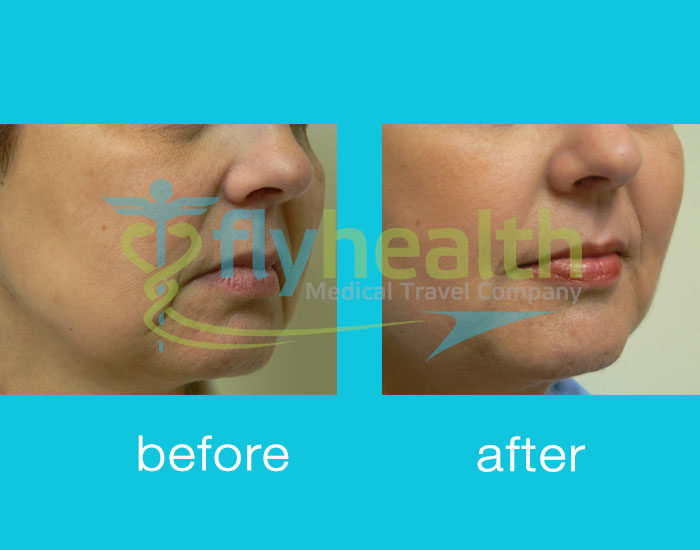 before-after-dermal-filling-01