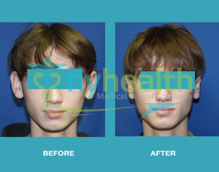 before-after-ear-surgery-01