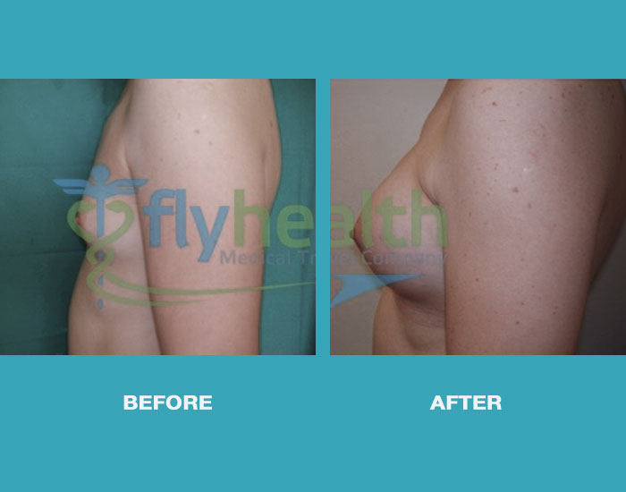before-after-fat-grafting-02