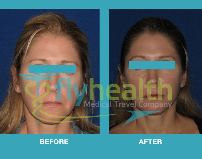before-after-fat-injection-surgery-01