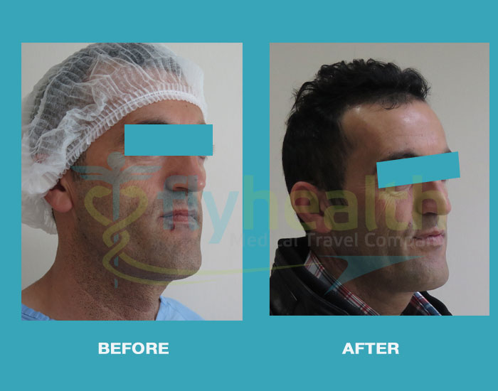 before-after-fat-injection-surgery-02