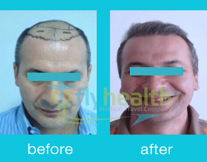 before-after-hair-transplant-01