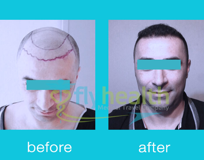 before-after-hair-transplant-02