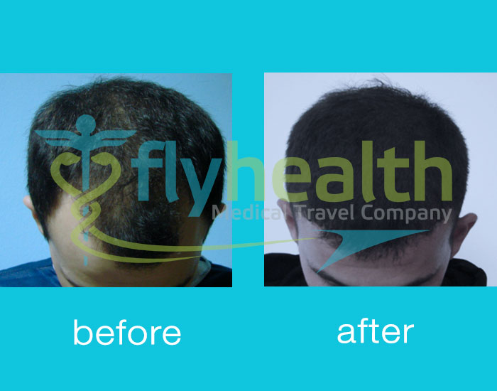 before-after-hair-transplant-06