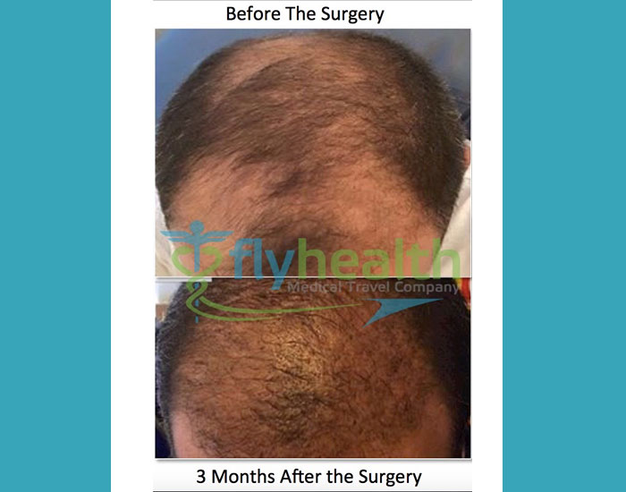 before-after-hair-transplant-18