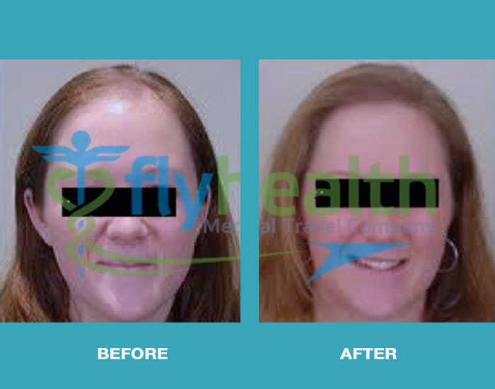before-after-hair-transplant-female-01
