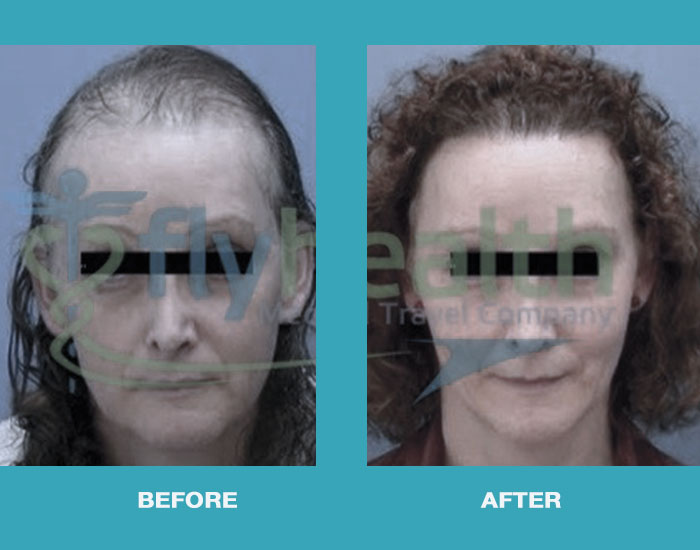 before-after-hair-transplant-female-02