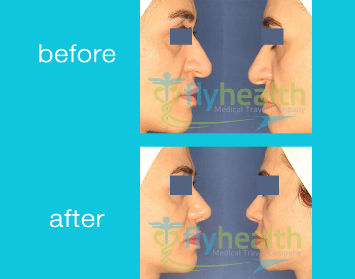 before-after-nose-surgery-01