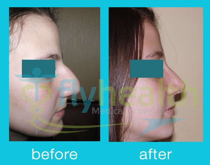 before-after-nose-surgery-02