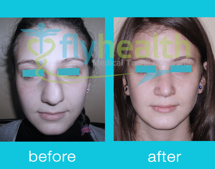 before-after-nose-surgery-04