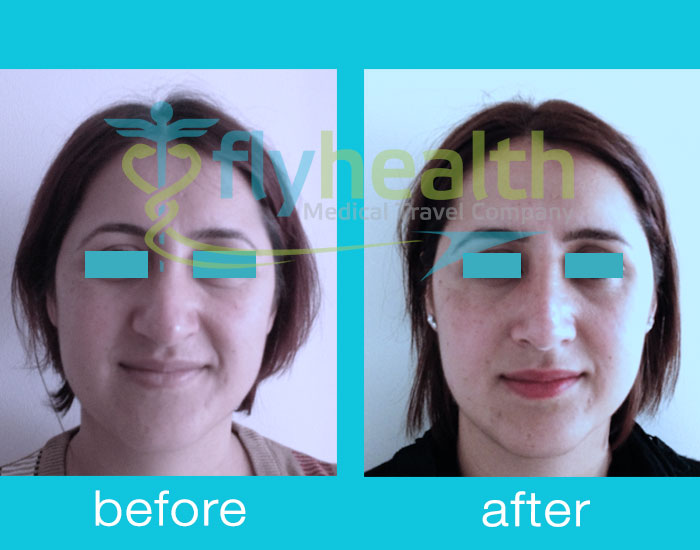 before-after-nose-surgery-05