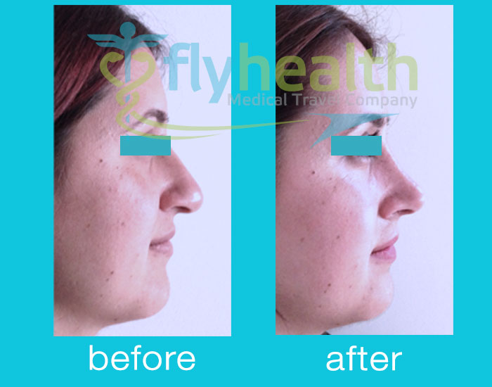 before-after-nose-surgery-07