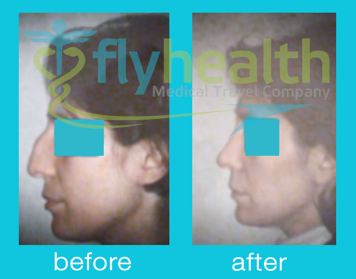 before-after-nose-surgery-09