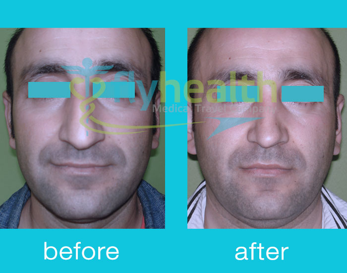 before-after-nose-surgery-11