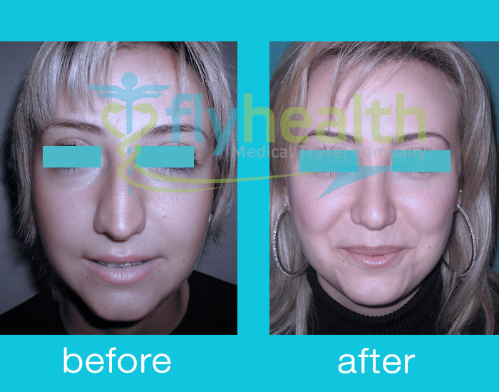 before-after-nose-surgery-12