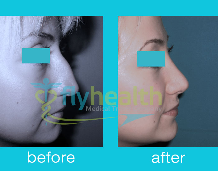 before-after-nose-surgery-14