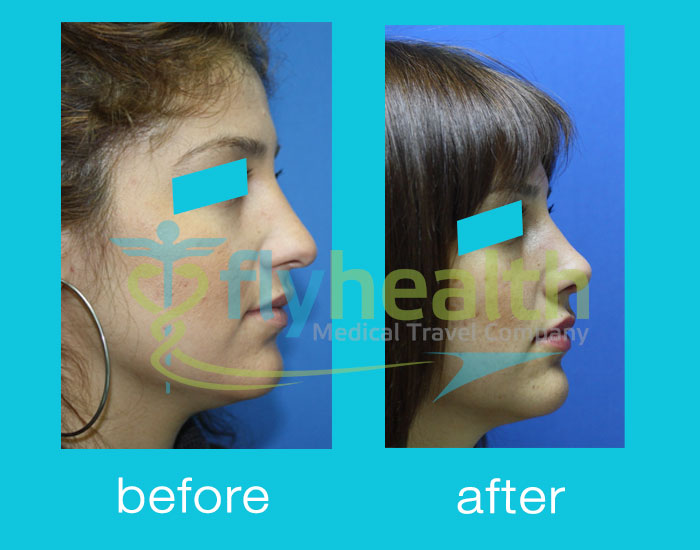 before-after-nose-surgery-19