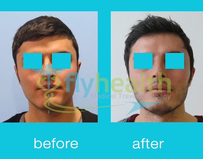 before-after-nose-surgery-20
