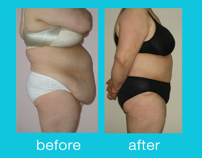 before-after-tummy-tuck-01
