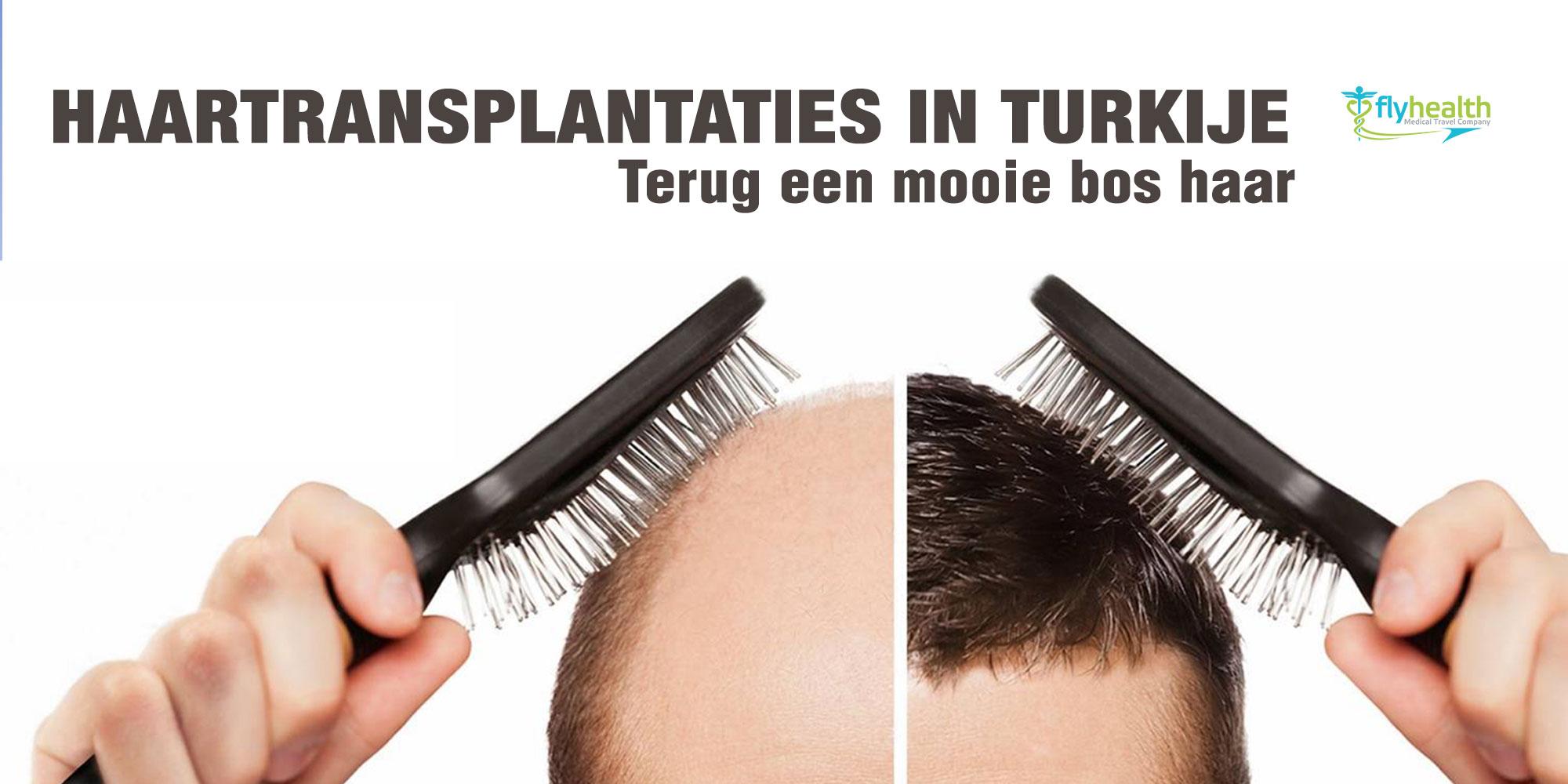 Haartransplantaties-in-Turkije-banner