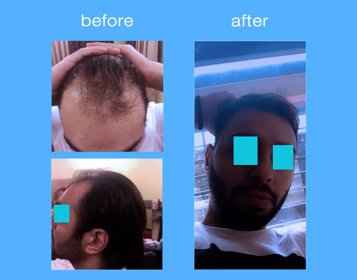 before-after-hair-transplant-24