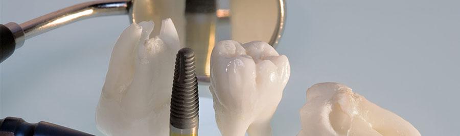 Tandheelkundig Implantaat turkije istanbul - Flyhealth