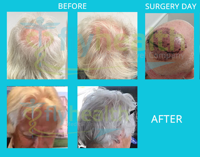 before-after-hair-transplant-43