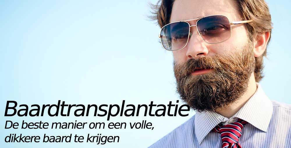 Baardtransplantatie----De-beste-manier-om-een-volle,-dikkere-baard-te-krijgen