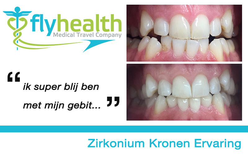 zirkonium-kronen-ervaring