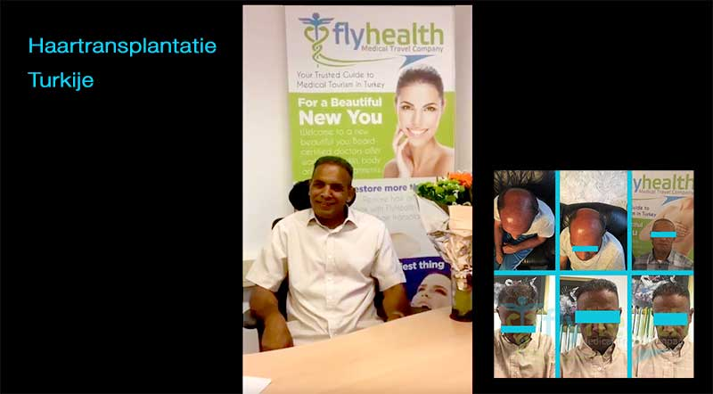 Haartransplantatie-Turkije-FlyHealth-FUE