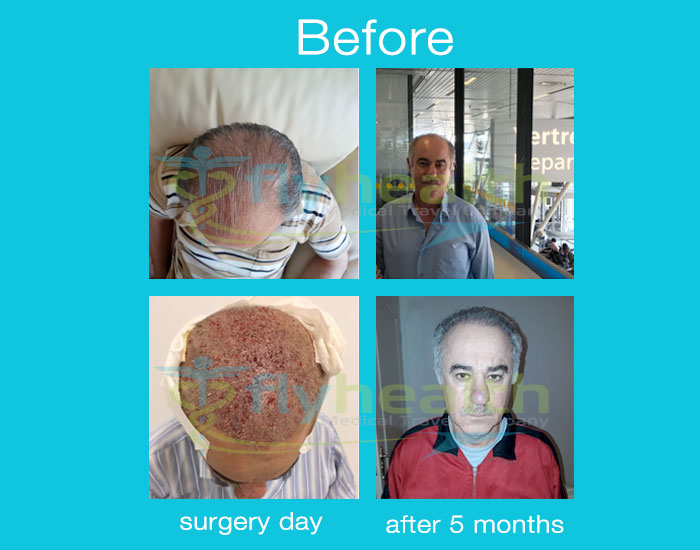 before-after-hair-transplant-35