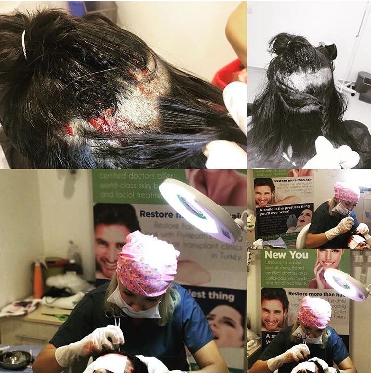 Haarverlies, een irritant verschijnsel