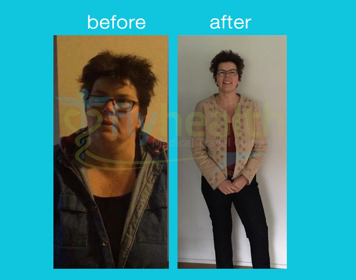 before-after-gastric sleeve-1