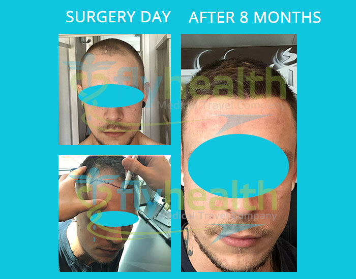 before-after-hair-transplant-40
